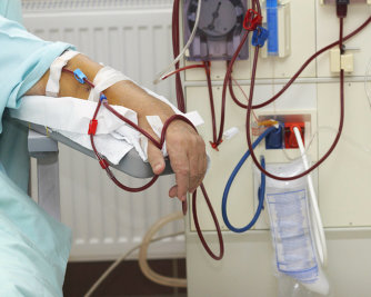 patient having a dialysis therapy